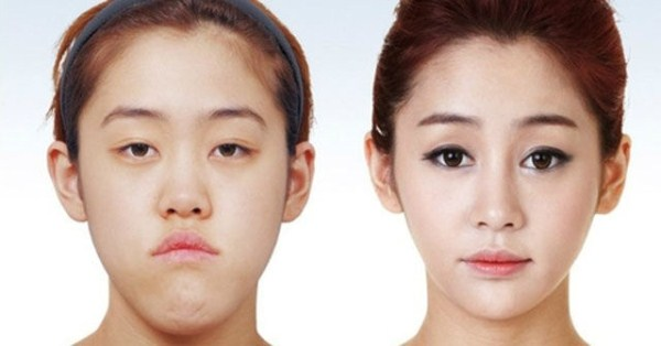 Tips On Selecting A Plastic Surgery Clinic In Korea